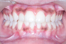 After Orthodontic Treatment Photos
