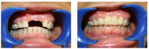 Dental Crown & Bridges Treatment Before and After Images