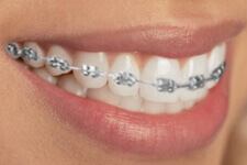 Metal Brackets Braces