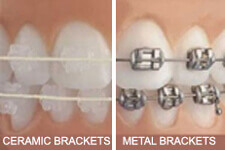 Ceramic and Metal Brackets for Dental Treatment