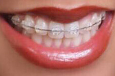 Ceramic Brackets for Braces