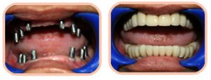 Before & After Full Mouth Implants Photos