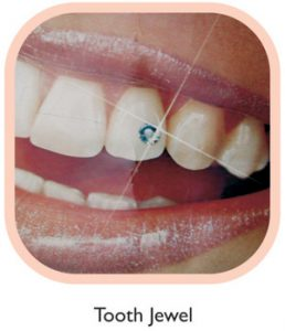 Tooth Jewel by Cosmetic Dentistry