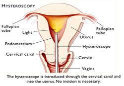 Hysteroscopy Treatment in India