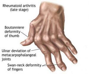 Arthritis in hands with late stage
