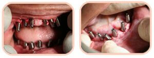 Before & After Photos Full Mouth Dental Implants